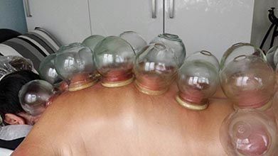 Afbeelding Cupping